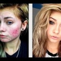 Acne-Coverage-Foundation-Routine-Watch-in-HD-2