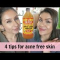 DIY-4-Tips-to-get-rid-of-acne-cystic-acne-Raji-Osahn