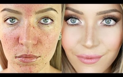 Acne-Coverage-Foundation-Routine-Acne-Scarring-Pigmentation-Stephanie-Lange